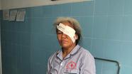 Người phụ nữ bị trâu húc tổn thương mắt