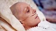 Dấu hiệu nhận biết 6 bệnh ung thư phổ biến