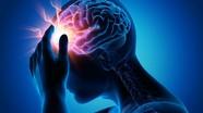 Làm thế nào dự đoán sớm cơn đột quỵ?