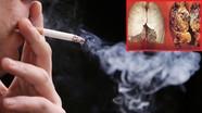 Khói thuốc lá, máy sấy tay có diệt được virus Corona hay không?