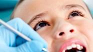 Xử trí khi răng sữa của trẻ bị đen