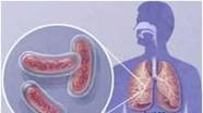 Bệnh Lao kháng thuốc - cách phòng và điều trị