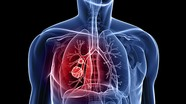 [Infographics] Hãy bảo vệ bạn khỏi bệnh ung thư phổi