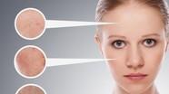 Nhận biết và chữa trị các bệnh về da thường gặp trong mùa hè