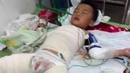 Xót xa cháu bé 5 tuổi bị bỏng nguy kịch do bạn nghịch xăng
