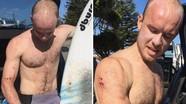 Chàng trai thoát chết nhờ đấm vào mặt cá mập