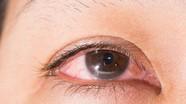 Biến chứng sau khi chữa bệnh mắt bằng phương pháp dân gian