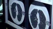 Dùng trí tuệ nhân tạo chẩn đoán sớm bệnh tim, ung thư