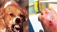 Các bước xử lý khi bị chó cắn để phòng tránh bệnh dại