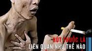 Hút thuốc lá liên quan như thế nào đến ung thư phổi?