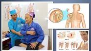 Điều trị viêm quanh khớp vai bằng phương pháp phục hồi chức năng