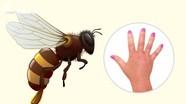 """Mẹo """"nhận dạng"""" đơn giản vết cắn do côn trùng"""