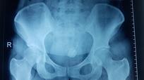 Vòng tránh thai đi lạc vào bàng quang