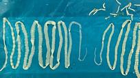 Cặp sán dây dài 2 m chui ra khỏi cơ thể người đàn ông