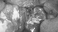 Mảnh xương gà chu du một tháng trong ruột bé gái