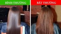 8 vấn đề sức khỏe tiết lộ qua tình trạng mái tóc của bạn
