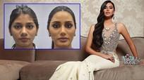 Á hậu 2 Miss Universe 2018 lộ ảnh trước khi phẫu thuật thẩm mỹ