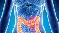 5 loại thực phẩm ăn nhiều dễ mắc ung thư ruột