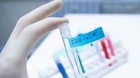 Bộ Y tế cấp phép sản xuất 2 bộ kit xét nghiệm Covid-19