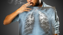 Hút thuốc lá gây nhiều bệnh nguy hiểm về phổi