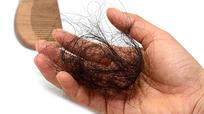 Vì sao bạn rụng tóc nhiều hơn người khác