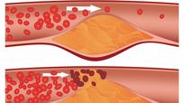 6 thói quen khiến mạch máu dễ tắc nghẽn bạn nên từ bỏ