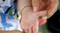 Đã tìm ra vắc xin phòng bệnh tay, chân, miệng