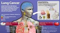 7 dấu hiệu ung thư phổi