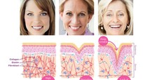 Phòng chống lão hóa sau tuổi 30 với collagen biển