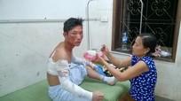 Nghệ An: Nổ lớn ở nhà máy chế biến tinh bột sắn, 4 người bị thương nặng