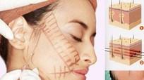Sai lầm khi sử dụng collagen