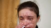 Gương mặt chằng chịt sẹo của nô lệ tình dục chạy trốn khỏi IS