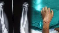 Nghệ An: Nối thành công bàn tay bị đứt lìa