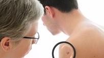 Năm loại ung thư phổ biến ở nam giới