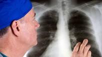 Ung thư phổi gây tử vong số 1 ở đàn ông