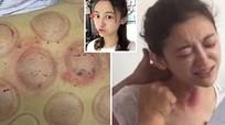 Nữ diễn viên Trung Quốc tử vong sau khi chữa ung thư bằng cạo gió, giác hơi