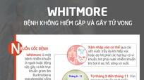 Whitmore - bệnh gây tử vong cao nhưng ít người biết