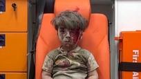 Nhói lòng hình ảnh những em bé Syria trong cuộc nội chiến đẫm máu