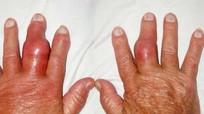 Mùa Tết, cảnh giác bệnh Gout
