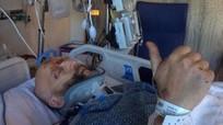 Diễn viên Harry Potter bị gãy cổ, thủng phổi sau tai nạn ô tô kinh hoàng