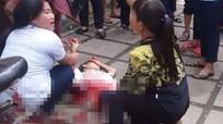 Xô xát nhau, một học sinh làm bị thương hai bạn học