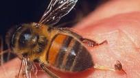 Cách xử lý khi bị ong độc đốt