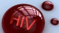Phơi nhiễm HIV và những điều cần biết
