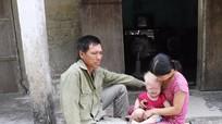 Hoàn cảnh éo le của gia đình cháu bé mắc bệnh bạch tạng bẩm sinh
