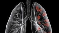 Tác nhân gây các bệnh nguy hiểm về phổi