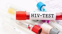 Nghệ An: 2 năm, phát hiện gần 1 nghìn trường hợp nhiễm HIV/AIDS mới