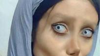 Phẫu thuật hơn 50 lần để giống Angelina Jolie nhưng lại hóa 'cô dâu ma'