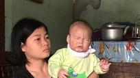 Người mẹ trẻ bất lực nhìn con 14 tháng tuổi mù lòa