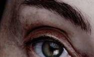 Đôi mắt tiết lộ điều gì về sức khỏe của bạn?
