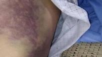 Ông bố ở Nghệ An bị con trai đánh gãy sườn, mẻ bánh chè, xương ống